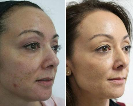 Case 5195 - Chemical Peels Gallery (Before & After) (3)