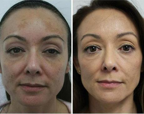 Case 5195 - Chemical Peels Gallery (Before & After)