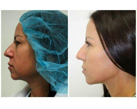 Case 5583 - Face Lift Gallery (Before & After) (2)