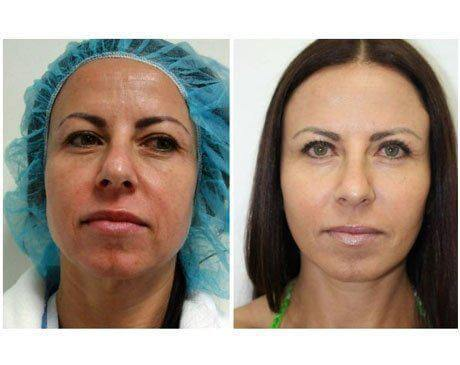 Case 5583 - Face Lift Gallery (Before & After)