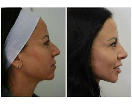 Case 5583 - Rhinoplasty Gallery (Before & After) (2)