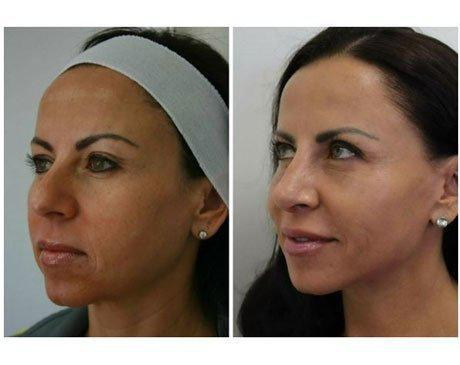 Case 5583 - Rhinoplasty Gallery (Before & After) (3)