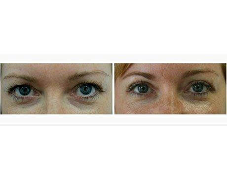 Case 5817 - Blepharoplasty Gallery (Before & After)
