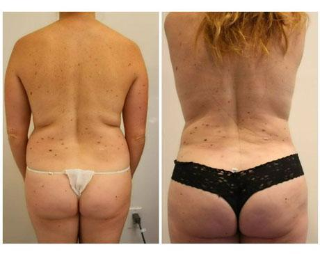 Case 5817 - Liposuction Gallery (Before & After) (2)