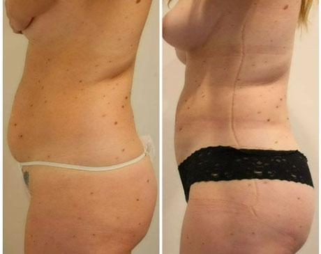 Case 5817 - Liposuction Gallery (Before & After) (3)