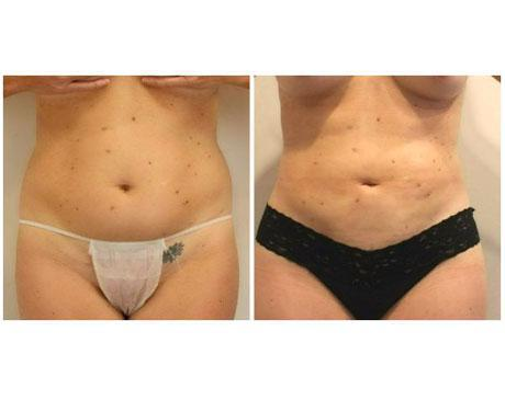 Case 5817 - Liposuction Gallery (Before & After)