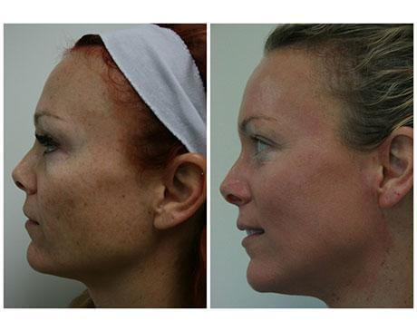 Case 5842 - PDT Gallery (Before & After)