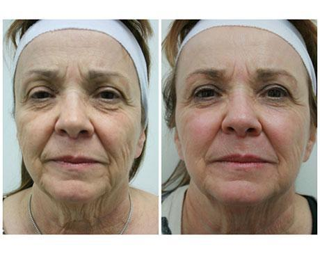 Case 5871 - Stem Cell Face Lift Gallery (Before & After) (2)