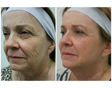 Case 5871 - Stem Cell Face Lift Gallery (Before & After)