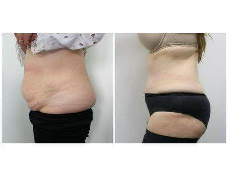 Case 5901 - Tummy Tuck Gallery (Before & After) (2)