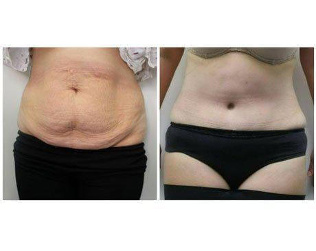 Case 5901 - Tummy Tuck Gallery (Before & After)