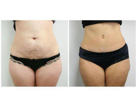 Case 5933 - Tummy Tuck Gallery (Before & After)