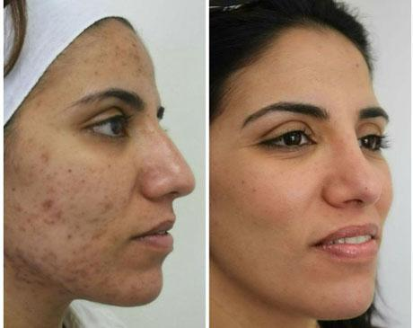 Case 6204 - Chemical Peels Gallery (Before & After) (2)