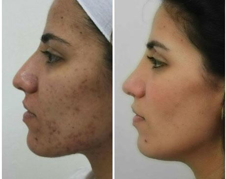 Case 6204 - Chemical Peels Gallery (Before & After) (3)