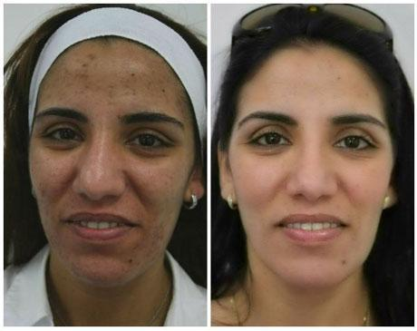 Case 6204 - Chemical Peels Gallery (Before & After)