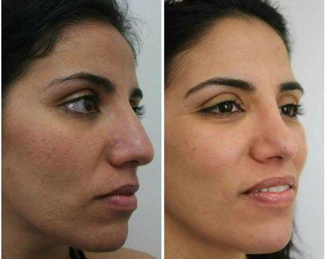 Case 6204 - Rhinoplasty Gallery (Before & After) (2)