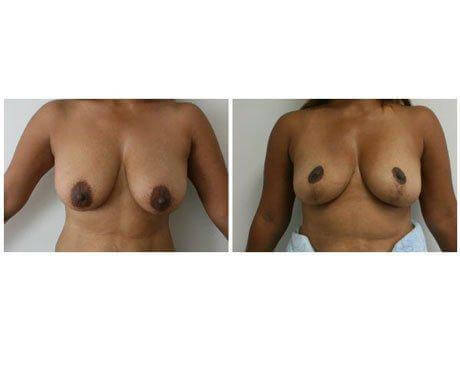 Breast Lift before & afters