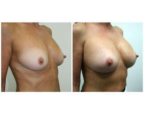 Case 7048 - Breast Augmentation Gallery (Before & After) (2)