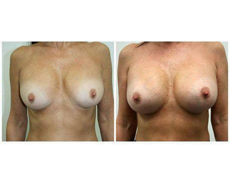 Case 7048 - Breast Augmentation Gallery (Before & After)
