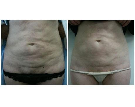 Case 7049 - Liposuction Gallery (Before & After)