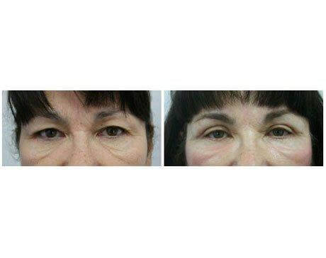 Case 7055 - Blepharoplasty Gallery (Before & After)