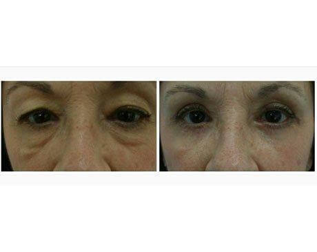 Case 7213 - Blepharoplasty Gallery (Before & After)