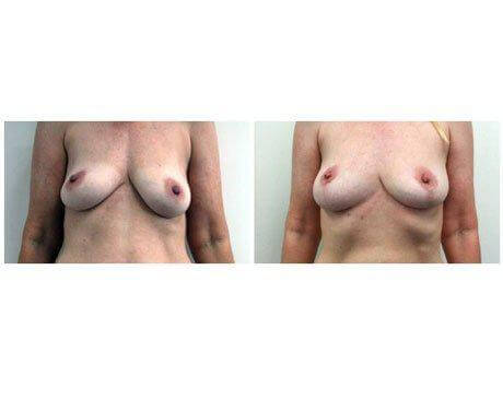 Case 7293 - Breast Lift post surgery