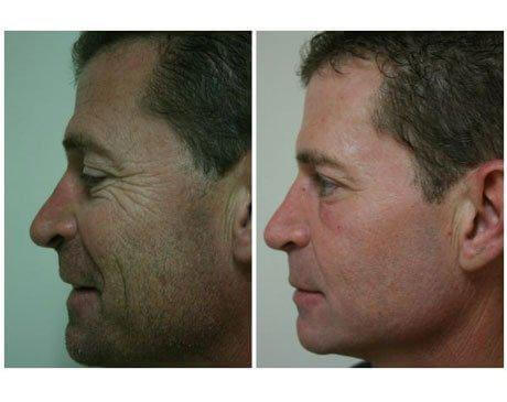 Case 753 - C02 Laser Resurfacing Gallery (Before & After) (2)