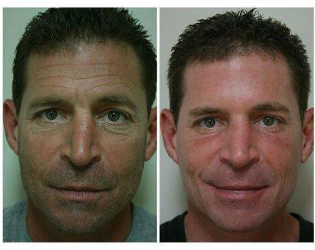 Case 753 - C02 Laser Resurfacing Gallery (Before & After)