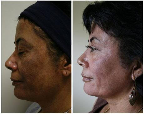 Case 7628 - Chemical Peels Gallery (Before & After) (2)