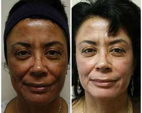 Case 7628 - Chemical Peels Gallery (Before & After)