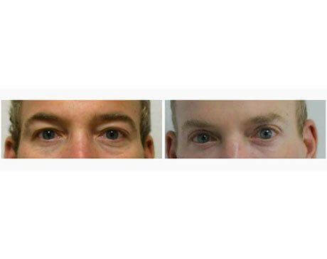 Case 7649 - Blepharoplasty Gallery (Before & After)