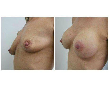 Case 7782 - Breast Augmentation Gallery (Before & After) (2)