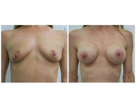 Case 7782 - Breast Augmentation Gallery (Before & After)