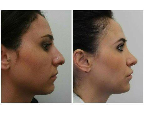 Case 7900 - Rhinoplasty Gallery (Before & After) (2)