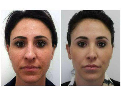 Case 7900 - Rhinoplasty Gallery (Before & After)