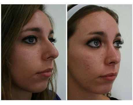 Case 7909 - Rhinoplasty Gallery (Before & After) (2)
