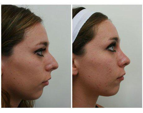Case 7909 - Rhinoplasty Gallery (Before & After) (3)