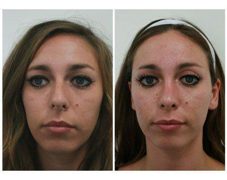 Case 7909 - Rhinoplasty Gallery (Before & After)