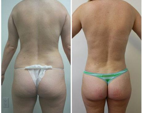 Case 7991 - Liposuction Gallery (Before & After)