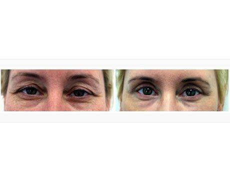 Case 8001 - Blepharoplasty Gallery (Before & After)