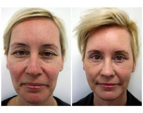 Case 8001 - C02 Laser Resurfacing Gallery (Before & After)