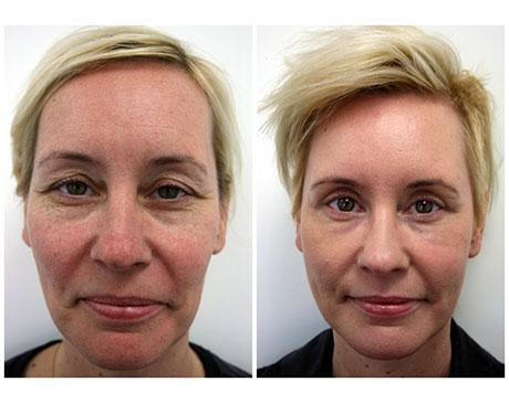 Case 8001 - Stem Cell Face Lift Gallery (Before & After)