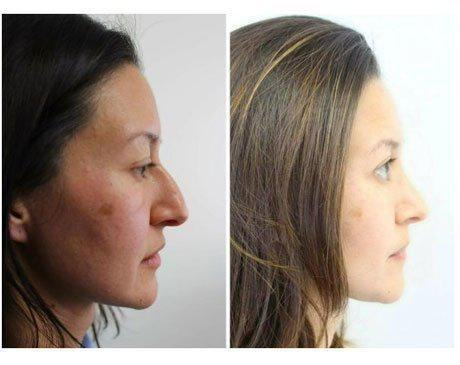 Case 8060 - Rhinoplasty Gallery (Before & After) (2)