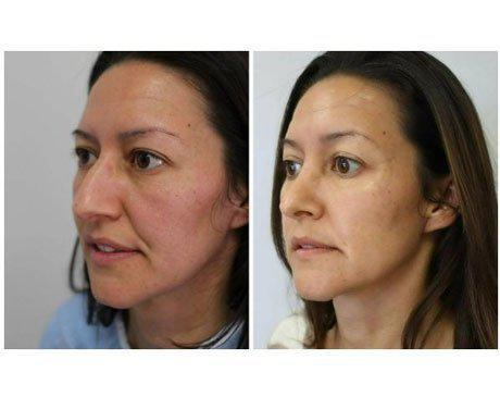 Case 8060 - Rhinoplasty Gallery (Before & After) (3)