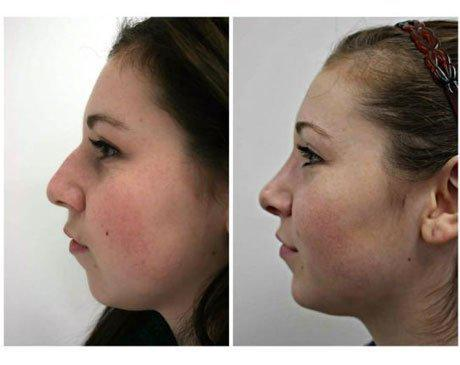 Case 8142 - Rhinoplasty Gallery (Before & After) (2)
