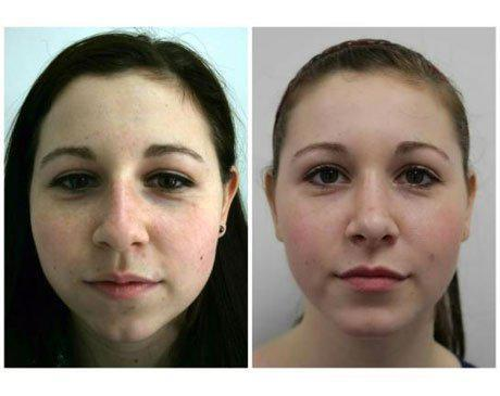 Case 8142 - Rhinoplasty Gallery (Before & After)
