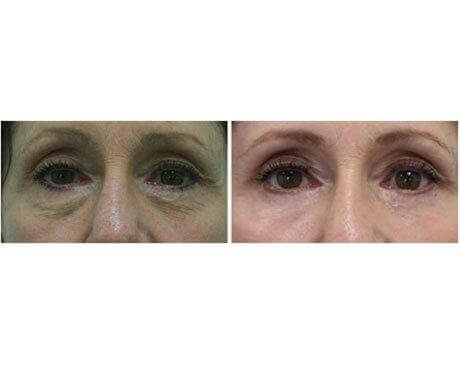 Case 8197 - Blepharoplasty Gallery (Before & After)