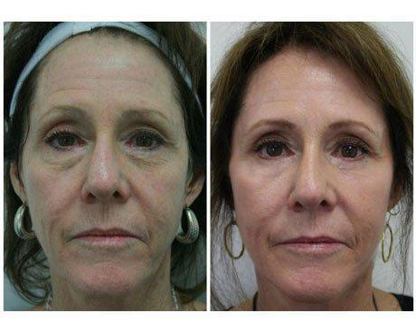 Case 8197 - C02 Laser Resurfacing Gallery (Before & After)