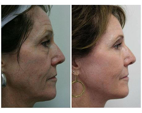 Case 8197 - Stem Cell Face Lift Gallery (Before & After) (2)